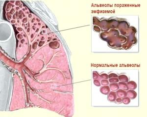 7 Ефективних способів лікування емфіземи за допомогою народної медицини