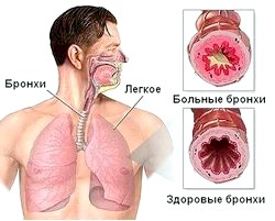 Алергічна бронхіальна астма: симптоми і лікування