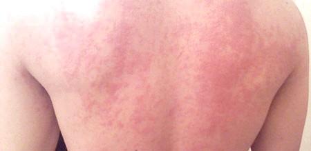 Хронічна кропив'янка: причини, симптоми і лікування