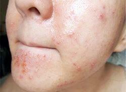 Алергія на хлорку - симптоми