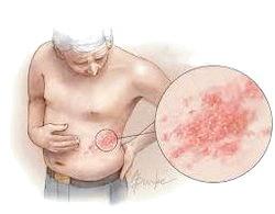 Алергія на мило: симптоми та лікування