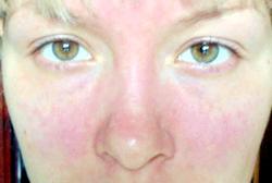 Алергія на нервовому грунті: симптоми та лікування