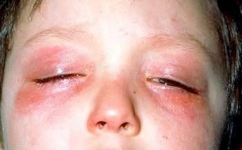 Алергія на повіках очей: лікування та прояви