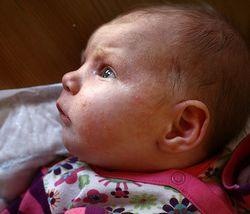 Алергія у грудної дитини - що робити?