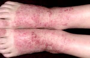 Атопічний дерматит фото