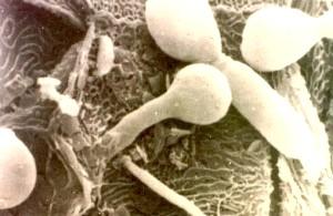 «Бліда поганка» в організмі: лікування кандидозу