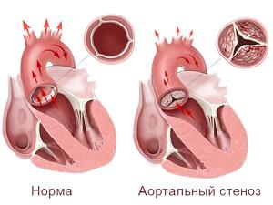 Чім небезпечний стеноз аортального клапана?