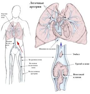Що потрібно знати про тромбофлебіті легеневої артерії?