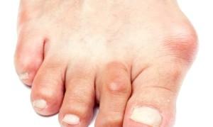 Що таке бурсит великого пальця?