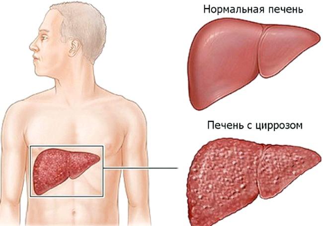 Чи існують засоби для лікування цирозу печінки