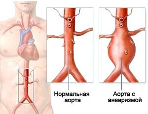 Атеросклероз черевного відділу аорти