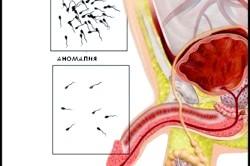 Норма і аномалія кількості сперматозоїдів