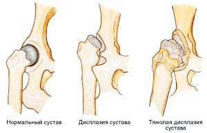 Дісплазія кульшового суглобу