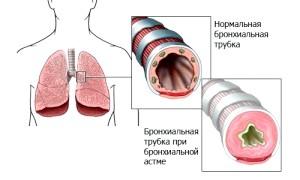 Дихайте вільно: лікування бронхіальної астми