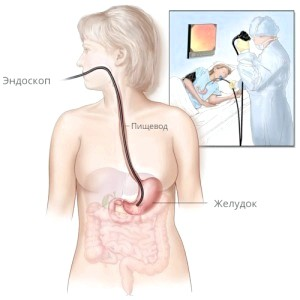 Фіброгастродуоденоскопія