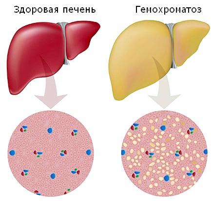 Гемохроматоз - накопичення заліза веде до захворювання