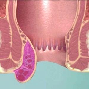 Зовнішній гемороїдальній тромбоз
