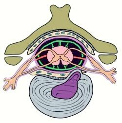 Грижа міжхребцевого диска при остеохондрозі