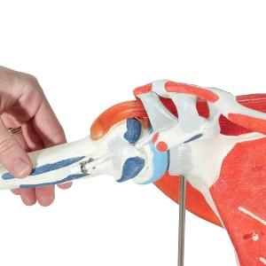 Імпіджмент-синдром плеча