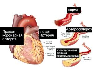 Історія хвороби атеросклеротичного кардіосклерозу