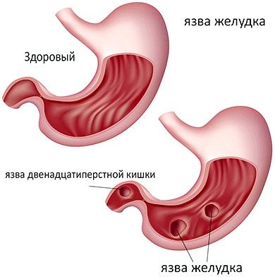 Виразка шлунка та дванадцятипалої кишки