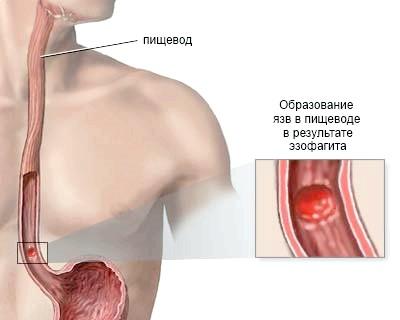 Ерозивно-виразковий езофагіт