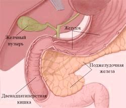 Ерозивний гастродуоденіт