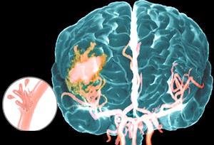 Як лікуваті інсульт геморагічного типу?