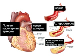 Як НЕ спровокуваті постінфарктний кардіосклероз?
