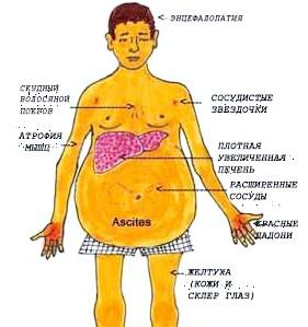 Які симптоми і достовірні ознаки говорять про цироз печінки