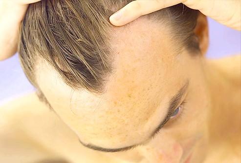 Що необхідно знати про випадання волосся у чоловіків?