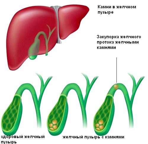 Хронічний калькульозний холецистит