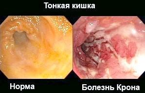 Кишкові та інші симптоми хвороби крона