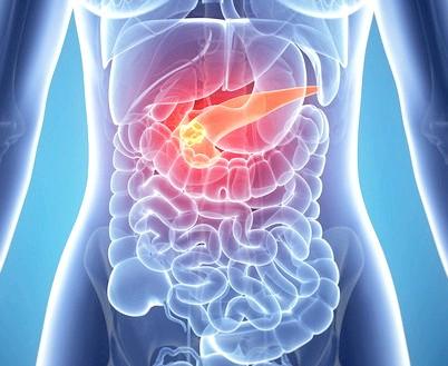 Панкреатит - запалення підшлункової залози