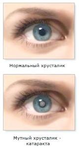 Лікування народними засобами катаракти без операції