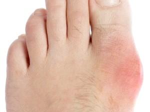 Лікування подагрічного артриту будинку