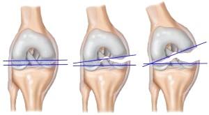 Лікування зв'язок і сухожиль коліна
