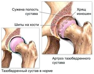 Раціон харчування при артрозі кульшового суглобу