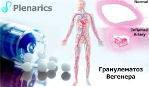 Множинне запалення судин: як лікувати гранулематоз Вегенера?
