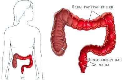 Неспецифічне запалення кишечника: причини і наслідки