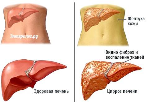 Основні ознаки захворювання печінки