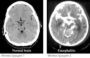 Обережно, енцефаліт: види, ознаки, лікування в домашніх умовах