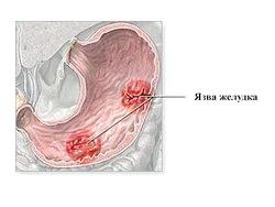 Харчування при виразковій хворобі дванадцятипалої кишки