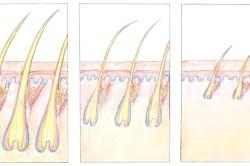 Виснаження і випадання волосся