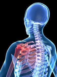 Причини и лікування субакроміального бурситу Плечових суглобу
