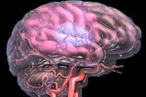 Бляшки порушують Кровообіг у мозком