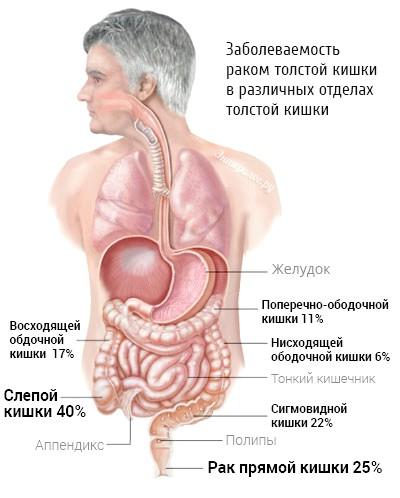 Ознаки та прояви раку кишечника