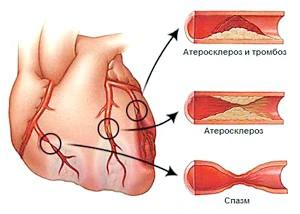 Ознака, симптоми и лікування стенокардії