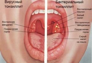 Прості рецепти лікування ангіни