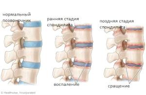 Симптоматика запальний процесів в хребті